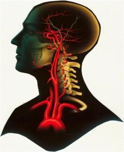 καρωτίδα- αγγειοχειρουργός- αθήνα